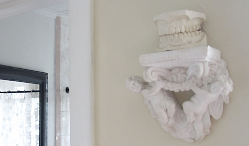 plaster angels and teeth